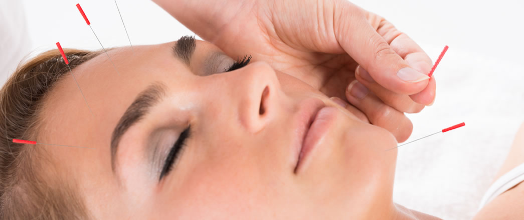 Acupuncture For Treatment Of Headaches And Migraines Stress Relief